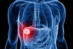 что такое гепатит