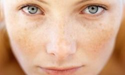 гиперпигментация кожи и как от нее избавиться