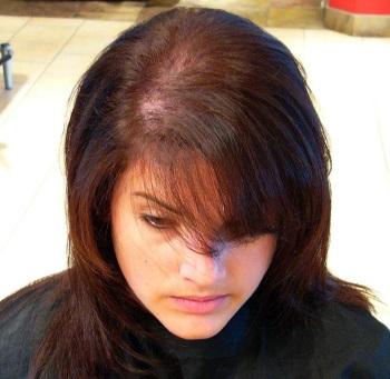 правильно ухаживать за волосами при алопеции
