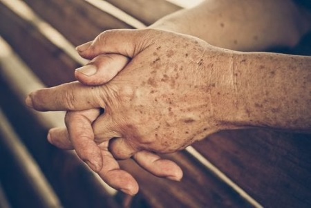 простые домашние средства от возрастных пятен на коже